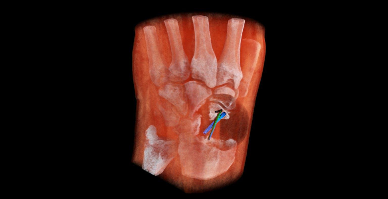 Radiografie a colori, in 3D e ora lo scanner è anche portatile