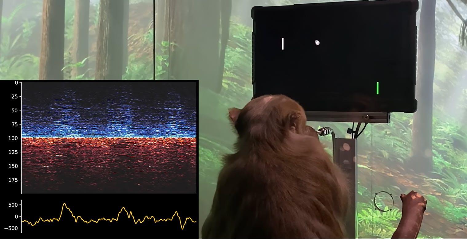 Neuralink di Elon Musk ha permesso a una scimmia di giocare a Pong con il pensiero