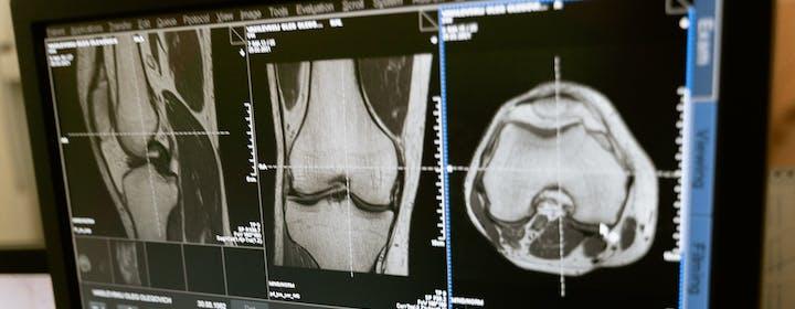 M2Test, la startup italiana che aiuta a diagnosticare in tempo l'osteoporosi. Come funziona il BES Test