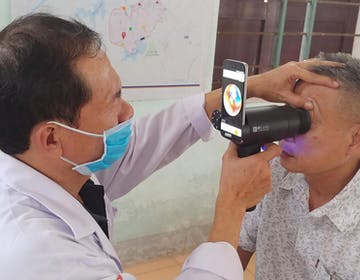 Samsung usa i vecchi smartphone Galaxy per diagnosticare le patologie degli occhi